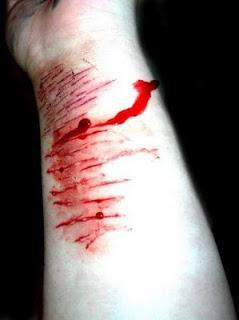 ViaFreud - dor - prazer - auto mutilacao - psicanálise